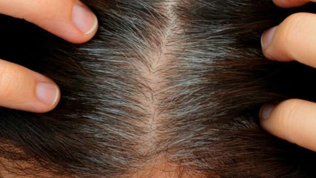 头发稀疏的可能原因?如何改善脱发