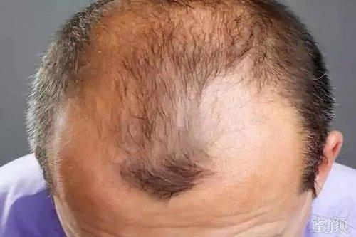 为什么选极客定制假发?定制假发价格!
