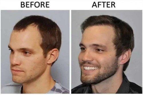 为什么定制男士假发套?男士假发套价格!