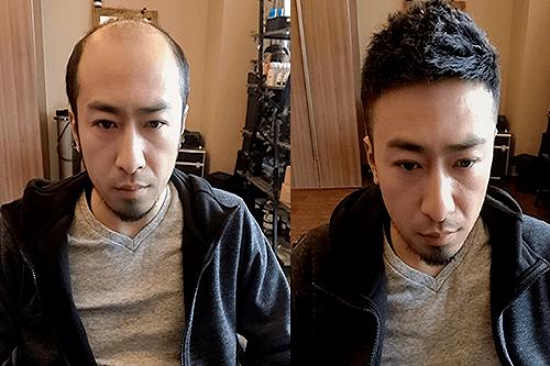 如何保养真人假发?清洗假发!